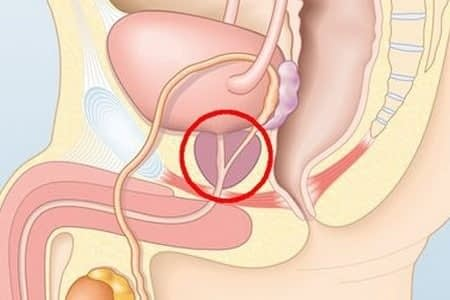 Как восстановить потенцию после удаления простаты народными средствами, упражнения для реабилитации эректильной функции после операции