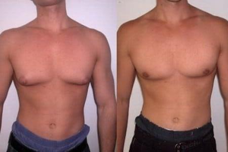 Мужчина с нормальной и увеличенной грудью
