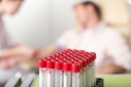 Как сдавать кровь на тестостерон у женщин